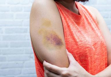 Что такое легкий вред здоровью и какое наказание за его причинение?